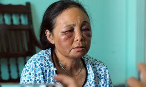 Người lạ đến xin lỗi hai phụ nữ bị đánh vì nghi bắt cóc