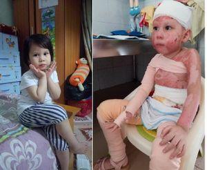 Bé gái 5 tuổi bị bỏng cồn cháy rực như ngọn đuốc, trải qua 4 lần phẫu thuật vẫn động viên bố 'con không sao'