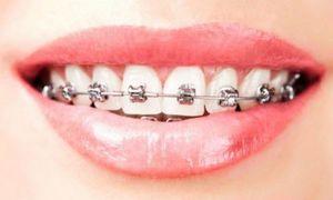 Cận cảnh quá trình niềng răng ít người biết