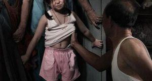 Cô bé 10 tuổi chú ruột bị hiếp dâm: Không biết mình mang thai 35 tuần