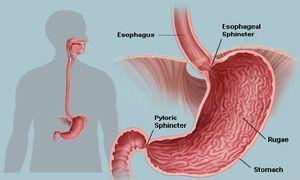 Dấu hiệu nhận biết rõ nhất nên biết về ung thư dạ dày