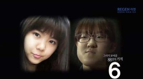 Thieu nu Han Quoc xinh dep hon nho can chinh mat lech - Anh 2