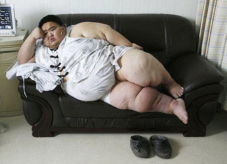 Nguoi dan ong beo nhat Trung Quoc da giam duoc 82kg - Anh 1