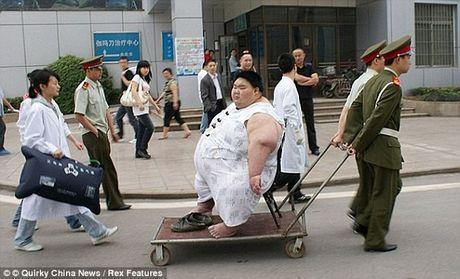 Nguoi dan ong beo nhat Trung Quoc da giam duoc 82kg - Anh 2
