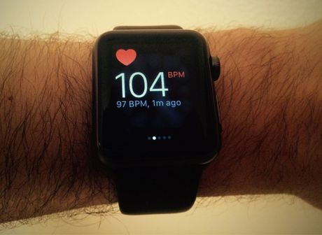 Apple Watch cuu song thieu nien 17 tuoi - Anh 1
