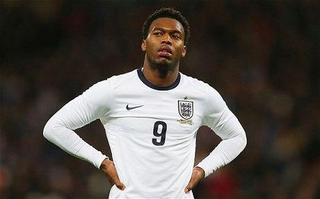 Liverpool vs Tottenham (23h30 ngay 2/4): Dai chien tuyen Anh - Anh 2