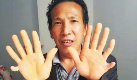Trung Quoc: Dau bung, di kham moi biet co 4 qua than - Anh 3