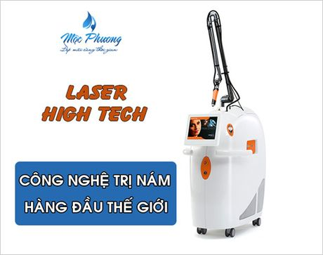 Dieu tri nam hieu qua bang cong nghe Laser High Tech - Anh 1