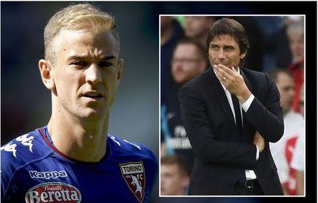 Joe Hart ve Chelsea, tai sao khong? - Anh 1