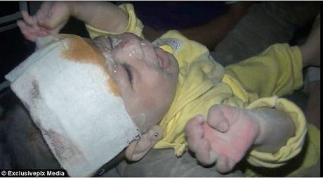 Em be duoc cuu song o Idlib, Syria - Bi kich cuoc chien - Anh 1