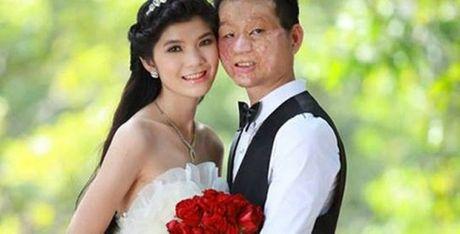 Hanh phuc kho tin cua kieu nu va chang trai mat bi bien dang - Anh 1