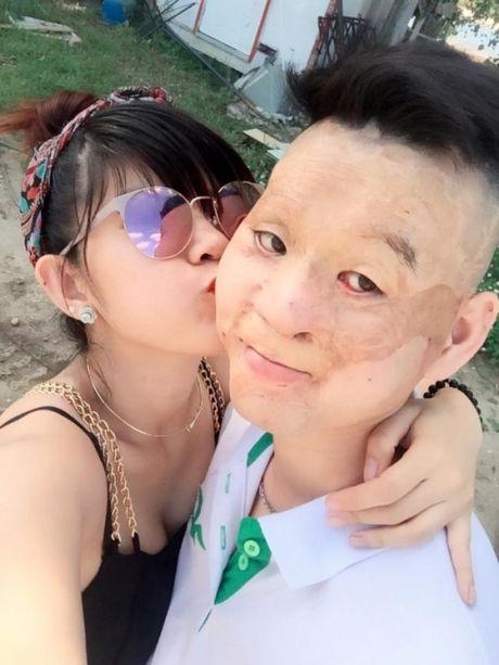 Hanh phuc kho tin cua kieu nu va chang trai mat bi bien dang - Anh 2