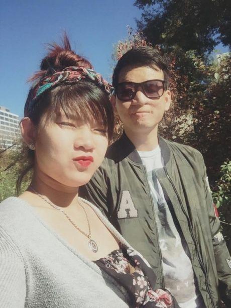 Hanh phuc kho tin cua kieu nu va chang trai mat bi bien dang - Anh 5