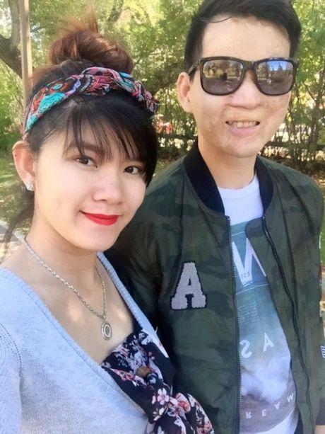 Hanh phuc kho tin cua kieu nu va chang trai mat bi bien dang - Anh 7