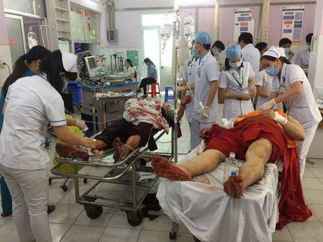 TP.HCM: Truy sat kinh hoang trong chua, 6 nguoi thuong vong - Anh 1