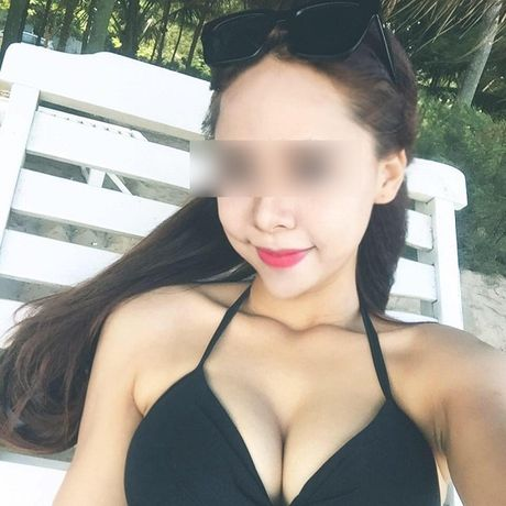 Hot girl thanh... 'xu nu' vi chong sap cuoi tang kem tri mun 'thao duoc' - Anh 4