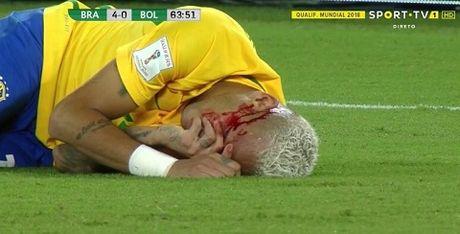 Brazil 5-0 Bolivia: Neymar bi danh chay mau trong ngay ghi ban thu 300 trong su nghiep - Anh 2