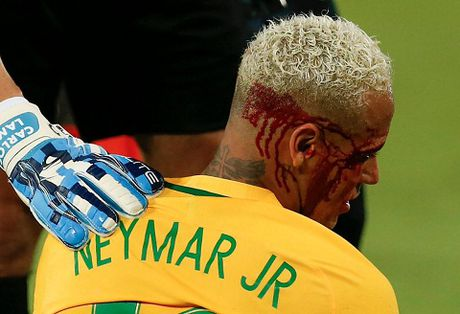 Brazil 5-0 Bolivia: Neymar bi danh chay mau trong ngay ghi ban thu 300 trong su nghiep - Anh 3
