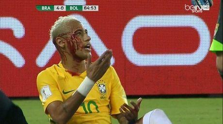 Brazil 5-0 Bolivia: Neymar bi danh chay mau trong ngay ghi ban thu 300 trong su nghiep - Anh 5