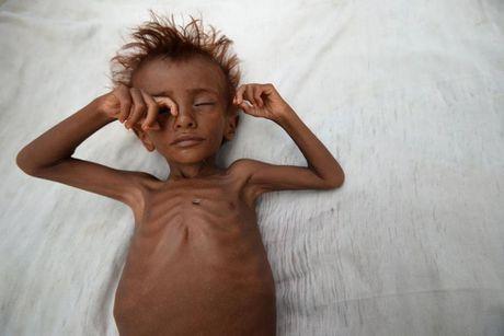 Ban se rot nuoc mat khi xem nhung hinh anh nay ve Yemen - Anh 1