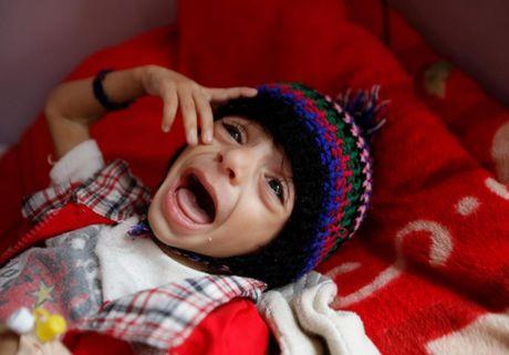 Ban se rot nuoc mat khi xem nhung hinh anh nay ve Yemen - Anh 2