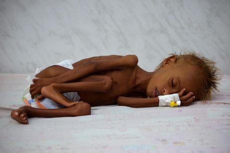 Ban se rot nuoc mat khi xem nhung hinh anh nay ve Yemen - Anh 3