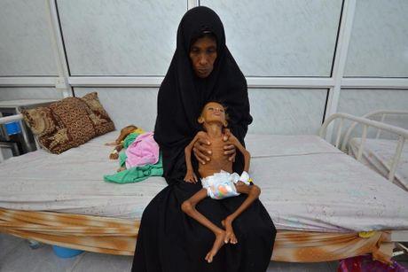 Ban se rot nuoc mat khi xem nhung hinh anh nay ve Yemen - Anh 4