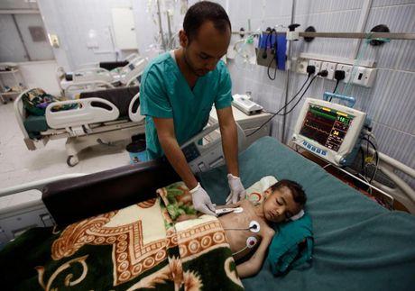 Ban se rot nuoc mat khi xem nhung hinh anh nay ve Yemen - Anh 5