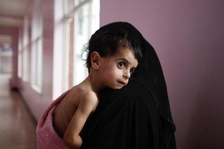 Ban se rot nuoc mat khi xem nhung hinh anh nay ve Yemen - Anh 7