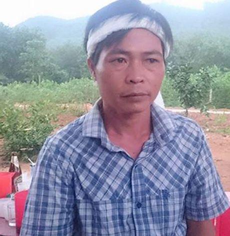 San phu tu vong bat thuong cung mau xuong trong tu cung - Anh 1