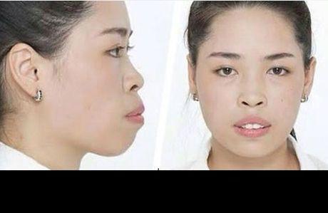 Hot girl tham my Nam Dinh lam gi sau 2 nam noi tieng? - Anh 2