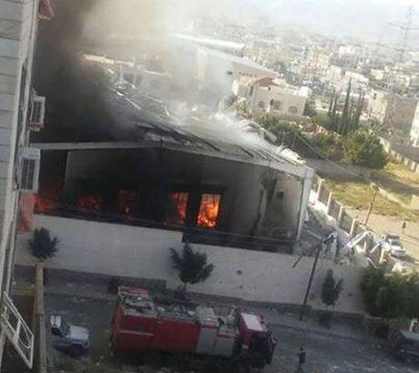 140 nguoi chet, 525 nguoi bi thuong trong cuoc khong kich vao nha tang le o Yemen - Anh 2