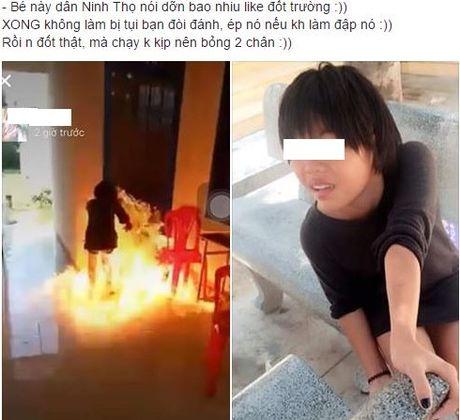 Nu sinh Khanh Hoa bi bong hai chan khi cham lua dot truong - Anh 1