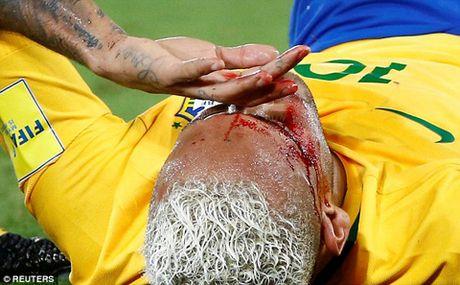 Neymar vua 'an don' vua bi chi trich la venh vao, khinh khinh - Anh 1
