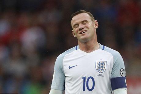 Rooney ngoi du bi tran Slovenia - Anh: Thao phanh kim ham - Anh 4