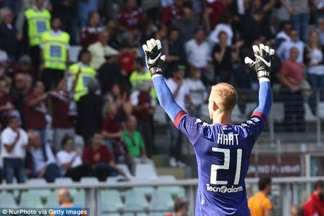 Nguoi Torino da than tuong va phai long Joe Hart - Anh 3