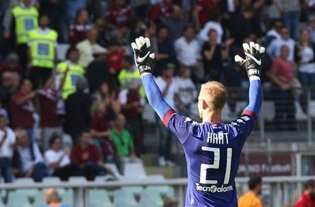 Bi Guardiola hat hui, Joe Hart duoc ton sung o Torino - Anh 2