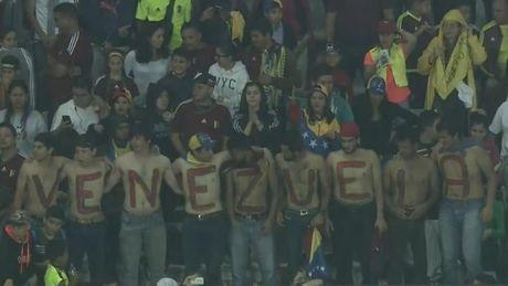 Brazil ha Venezuela o tran cau gap su co mat dien - Anh 15