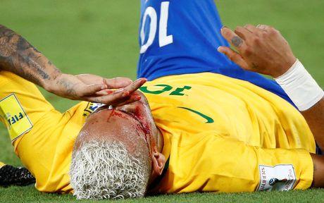 Brazil ha Venezuela o tran cau gap su co mat dien - Anh 5