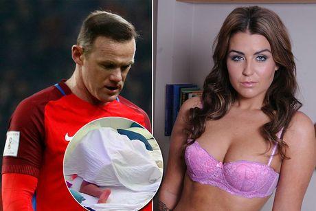 'Gai ban hoa' tung qua tay Rooney 'sex' ngay tren truyen hinh - Anh 1