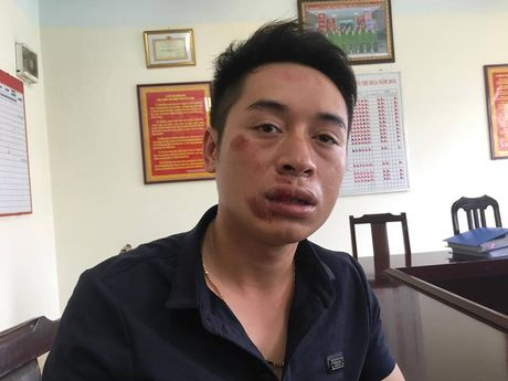 Nam thanh nien dam CSGT gay hai rang cua - Anh 1