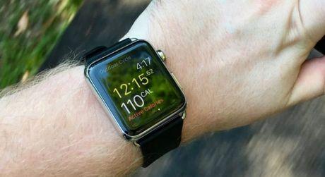 Apple Watch la thiet bi deo suc khoe chinh xac nhat - Anh 1