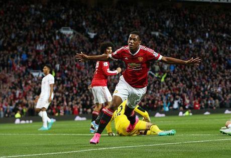 Anthony Martial than thiet voi huyen thoai Arsenal - Anh 1