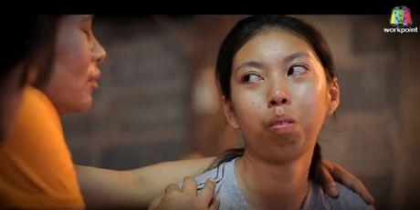 Noi tiep Han Quoc, Thai Lan thuc hien chuong trinh truyen hinh ve phau thuat tham my! - Anh 1