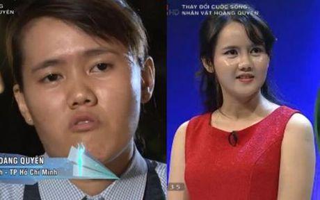 Noi tiep Han Quoc, Thai Lan thuc hien chuong trinh truyen hinh ve phau thuat tham my! - Anh 6