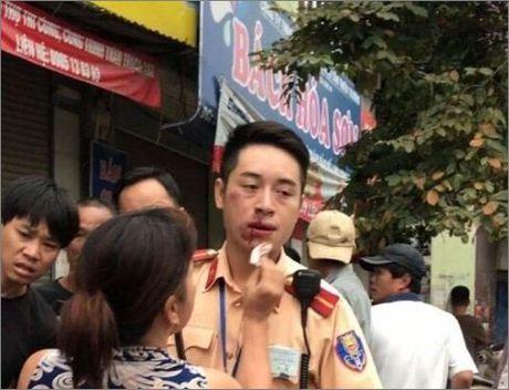 Thanh nien dam gay rang CSGT: Chua khoi to - Anh 1