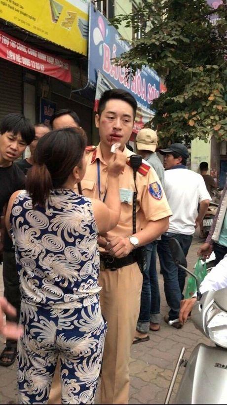 Thanh nien dam gay rang CSGT: Chua khoi to - Anh 3