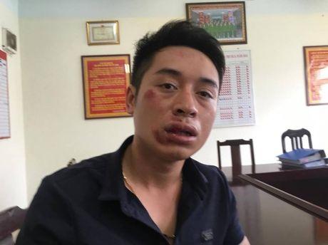 Thanh nien dam gay rang CSGT: Chua khoi to - Anh 4