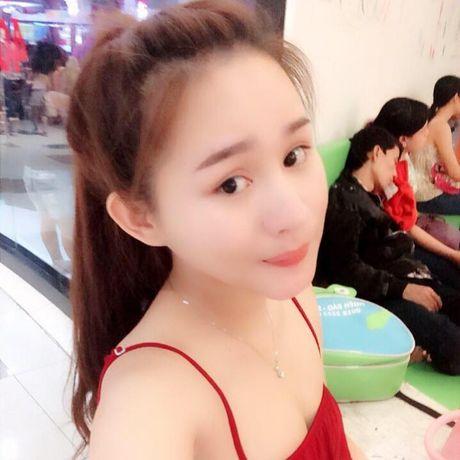 Co gai 9X khoe nhan sac xinh dep sau PTTM tra han tinh - Anh 5
