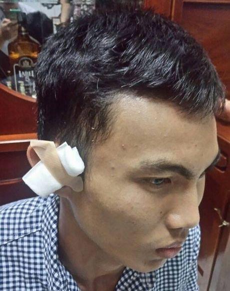 Dinh chi cong tac phuong doi truong no sung ban nguoi - Anh 1
